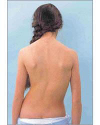 El principio del masaje de la escoliosis