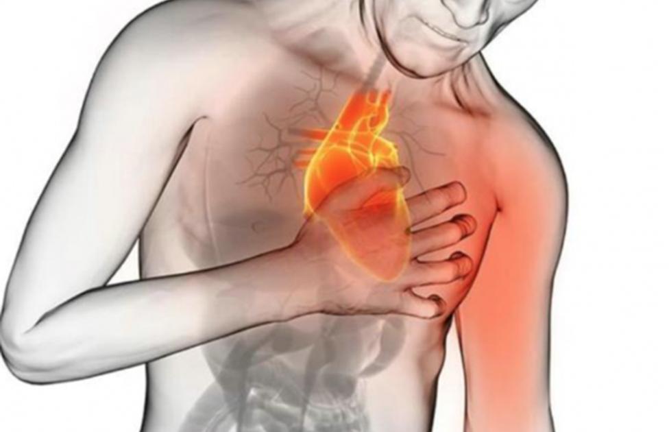 Resultado de imagen para evento cardiovascular
